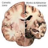 Convegno ad Avellino su patologie neurodegenerative
